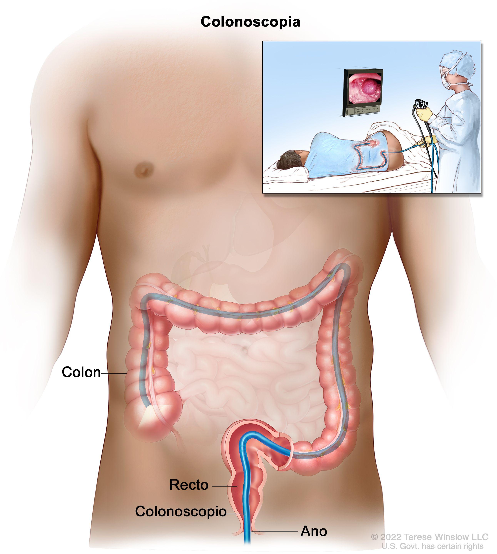 Cancer de colon bolsa heces - pcmaster.ro Cancer de colon bolsa