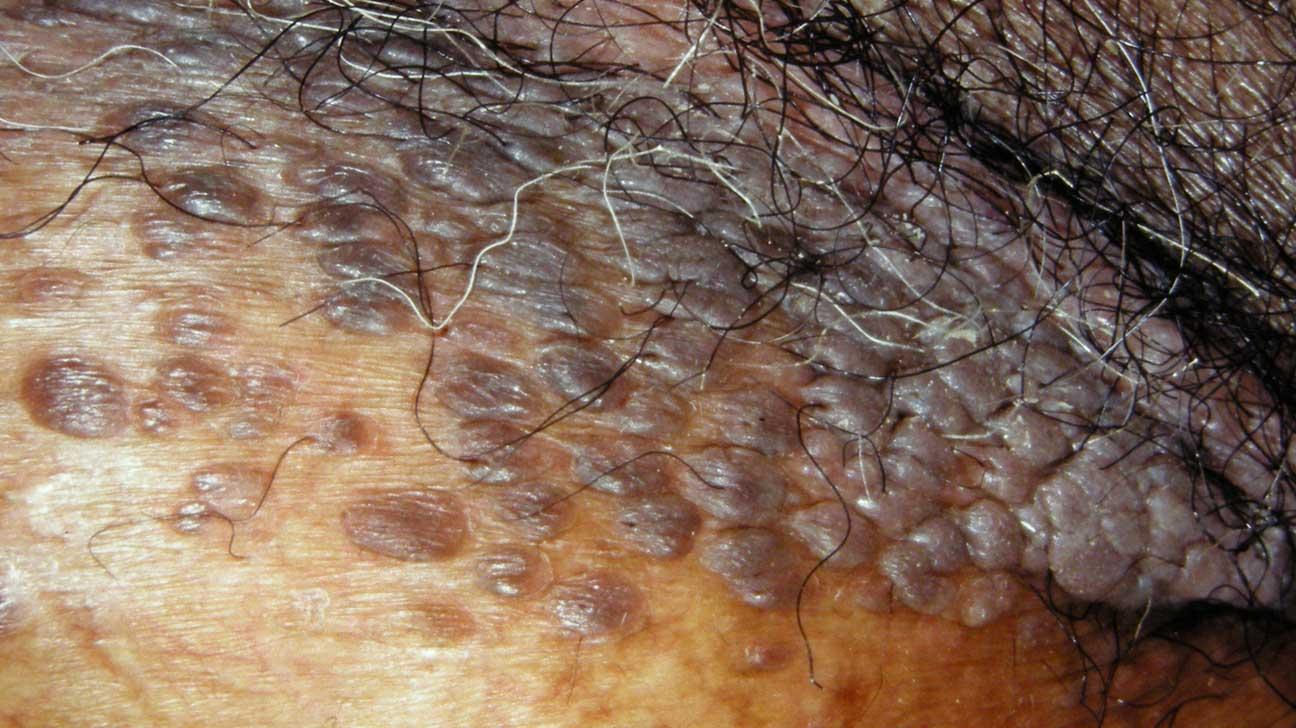 cancer pancreatico biliary