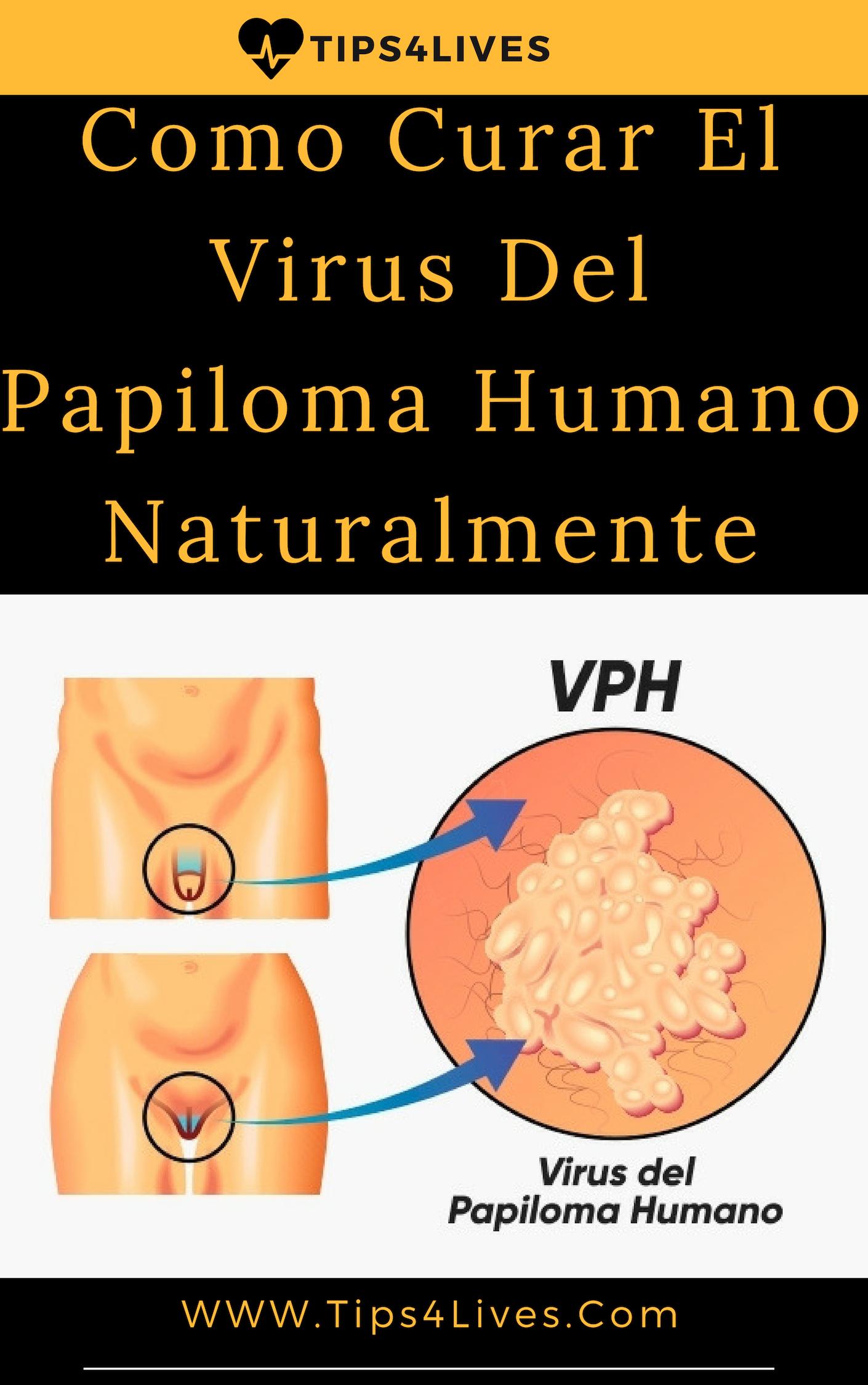 Virus del papiloma humano en mujeres y hombres, Most viewed - Virus papiloma en hombres y mujeres