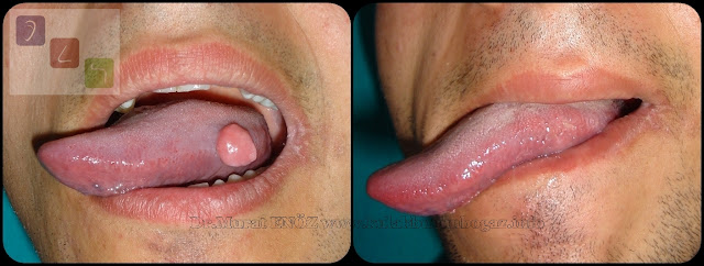 hpv warts on tongue treatment