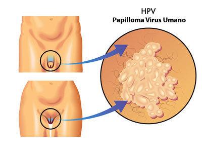 papilloma virus e bruciatura