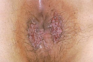 Hpv burning skin, Confluent and reticulated papillomatosis up to date