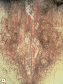 condiloame în ajunul vaginului