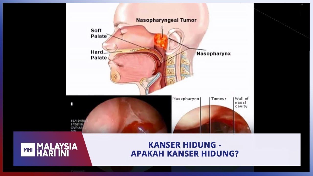 simptom kanser hidung bichon frise papillomas