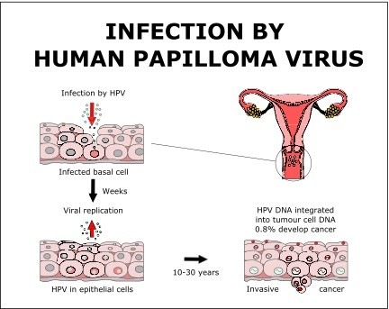Hpv causes diarrhea. Pancreatitis - Early Warning Signs papiloma humano en el recto sintomas