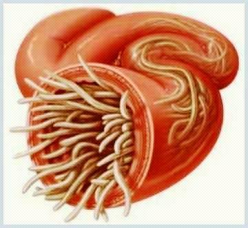 Paraziți umani și tratamentul acestora, Infectia cu giardia (giardioza)
