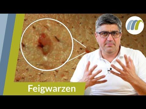 papilloma virus gola incubazione pastile parazite ieftine