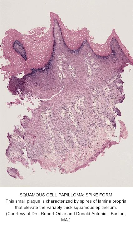 esophageal squamous papilloma histology medicamente pentru paraziti intestinali la pisici