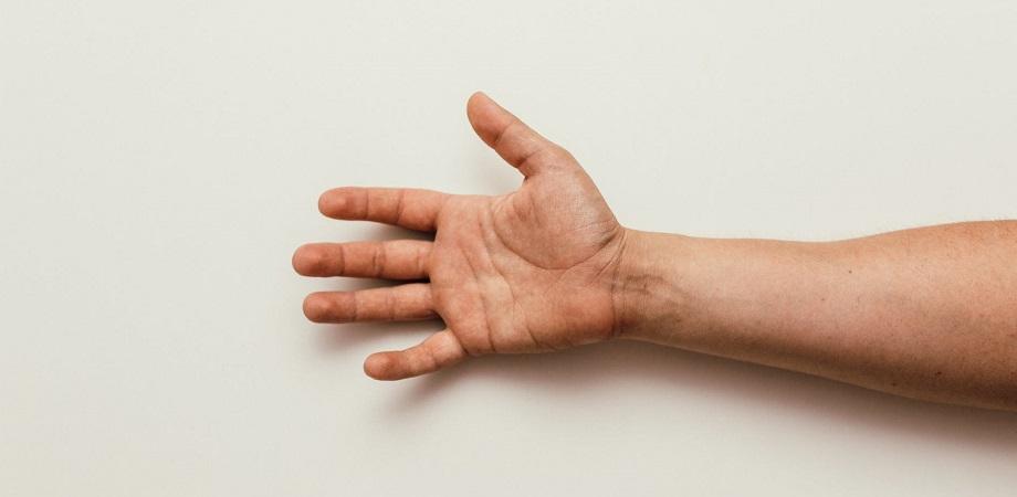 verucă la încheietura mâinii
