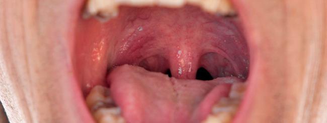 papiloma virus en la boca papiloame recenzii ale oamenilor