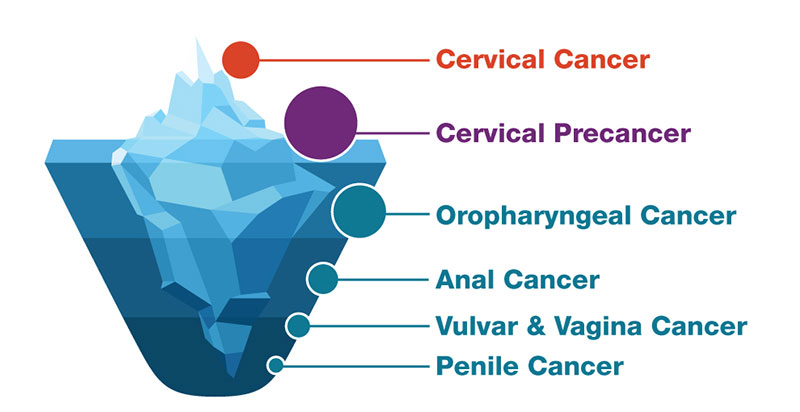 Human Papillomavirus (HPV) - ARNm E6/E7