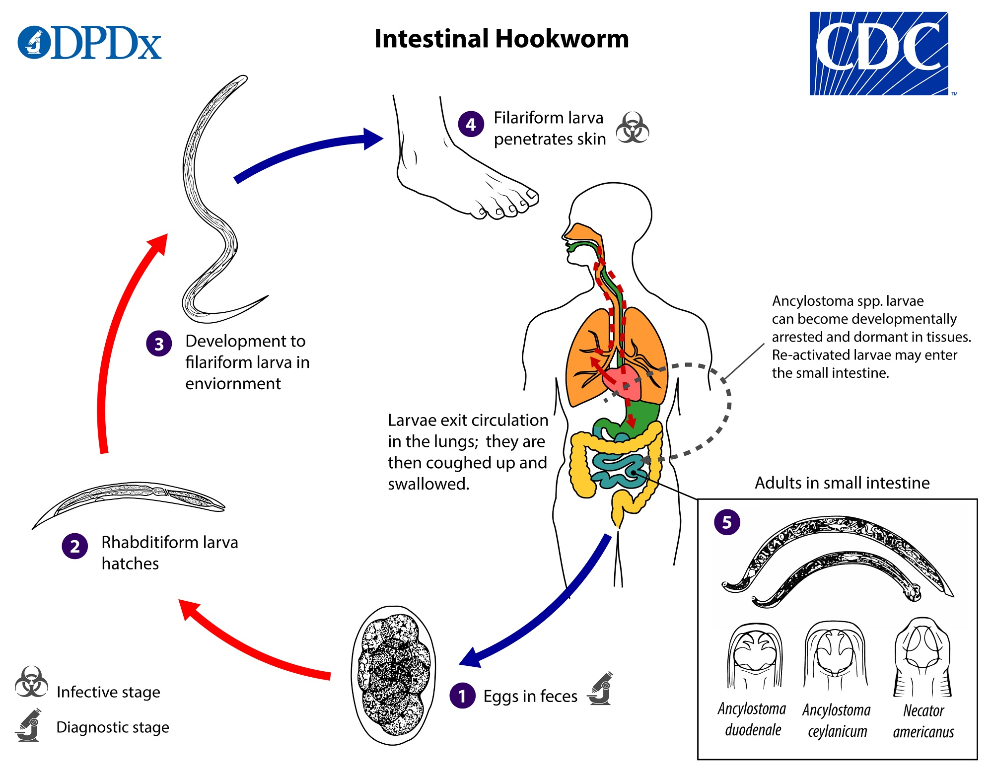 Hookworm helminthic therapy. Hookworm Helminthic Therapy Self Infection endometrial cancer in colon