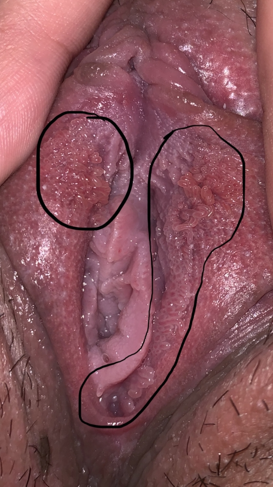 vestibular papillomatosis cream cauze mentale ale apendicitei