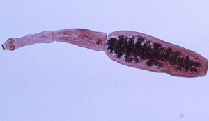 Parazit na jetri