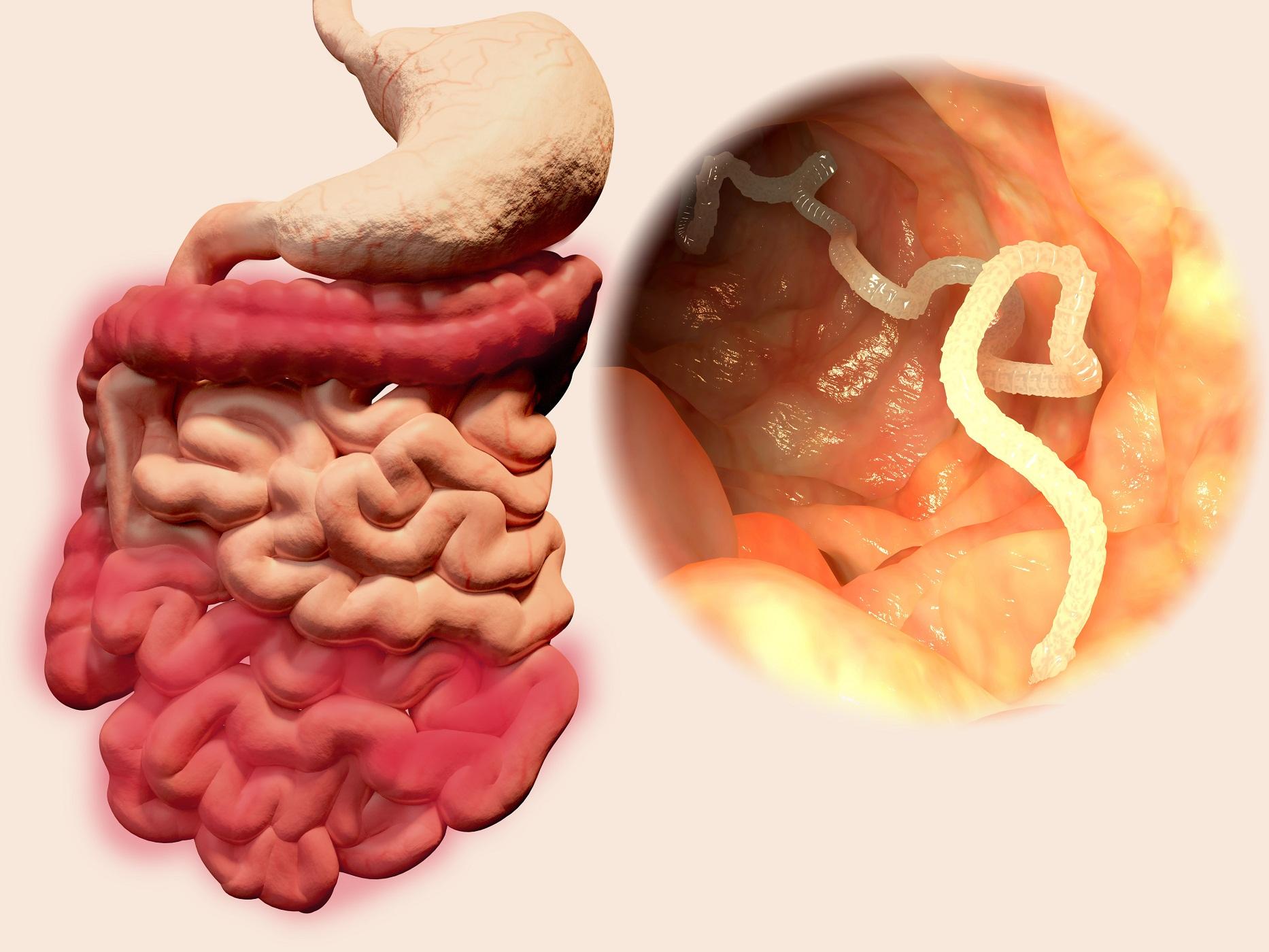 6 simptome ale paraziților intestinali — Doza de Sănătate Paraziti in corp simptome