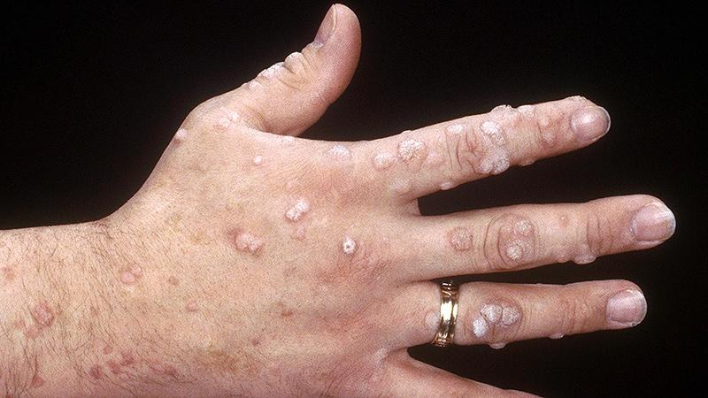 human papillomavirus in greek