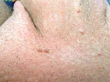 tratament giardia oameni tipuri de viermi la om tratamentul simptomelor