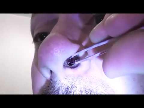 cum să omori viermi încrucișați pastile și medicamente pentru viermi