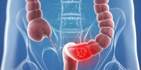 Cancerul de colon - simptome si diagnostic