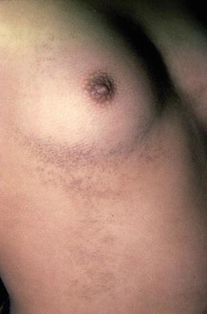 Papillomatosis causes Papillomavirus vaccin femme
