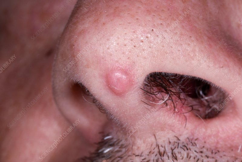 Removal of papilloma. Human papillomavirus 52 positive squamous cell carcinoma of the conjunctiva