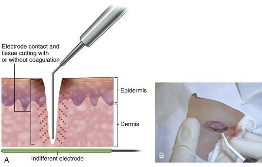 Surgitron - ceea ce este: metoda de tratare a undelor radio - Alopecie