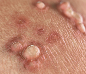 cancer man aggressive hpv virus treatment vitamins