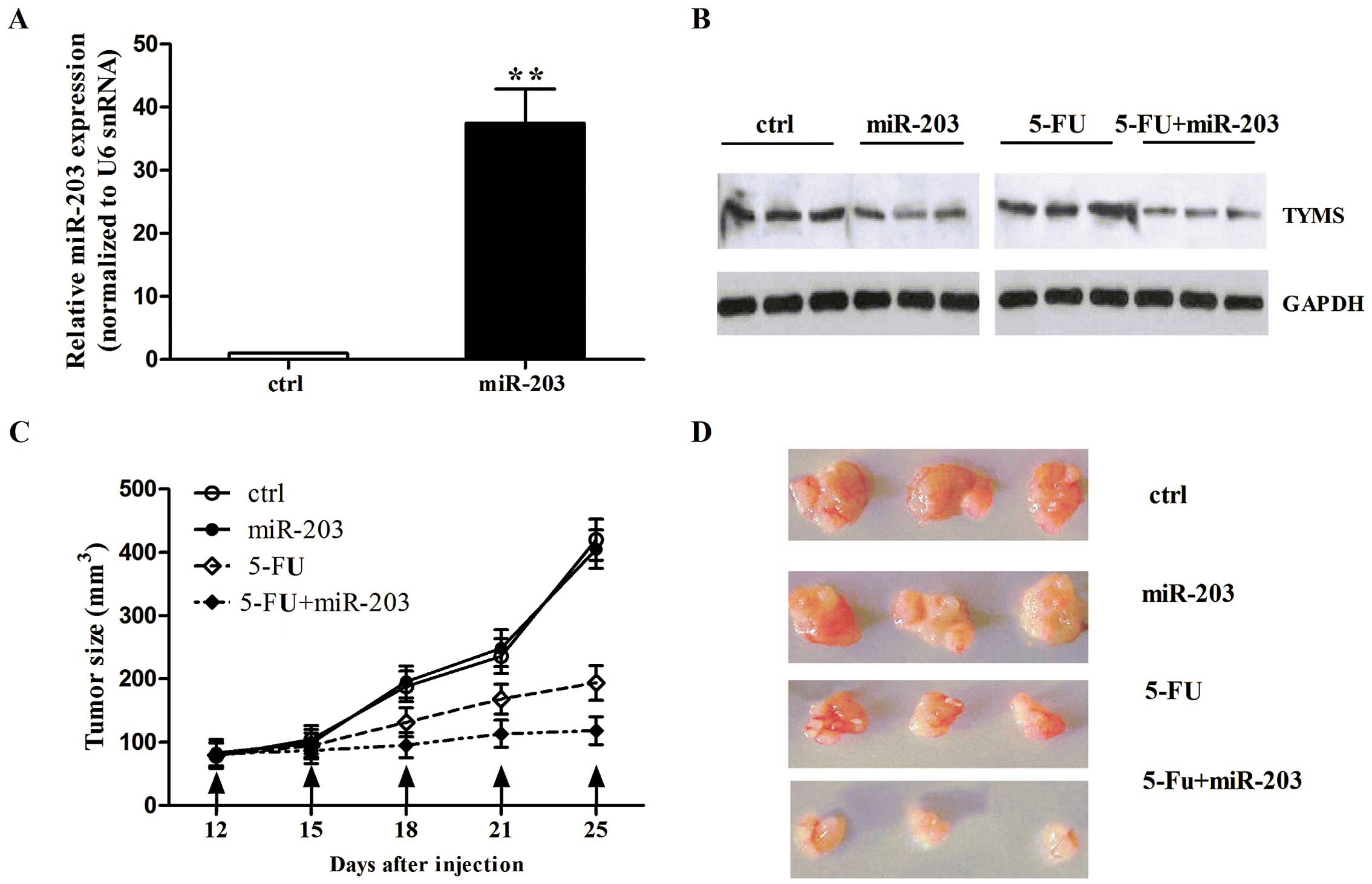 Screening mutatii in gena DPYD