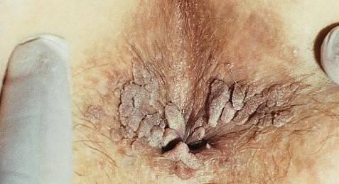 Condiloamele sunt vindecate cum se îndepărtează papilomul de pe mamelon