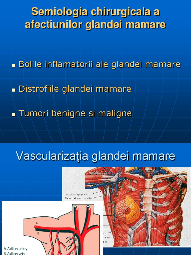 cancerul glandei mamare ppt