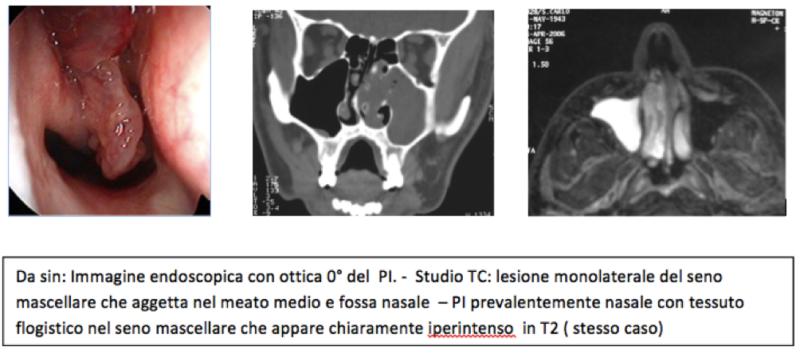Papilloma invertito mascellare Neuro Chi Rur Gia, Papilloma invertito