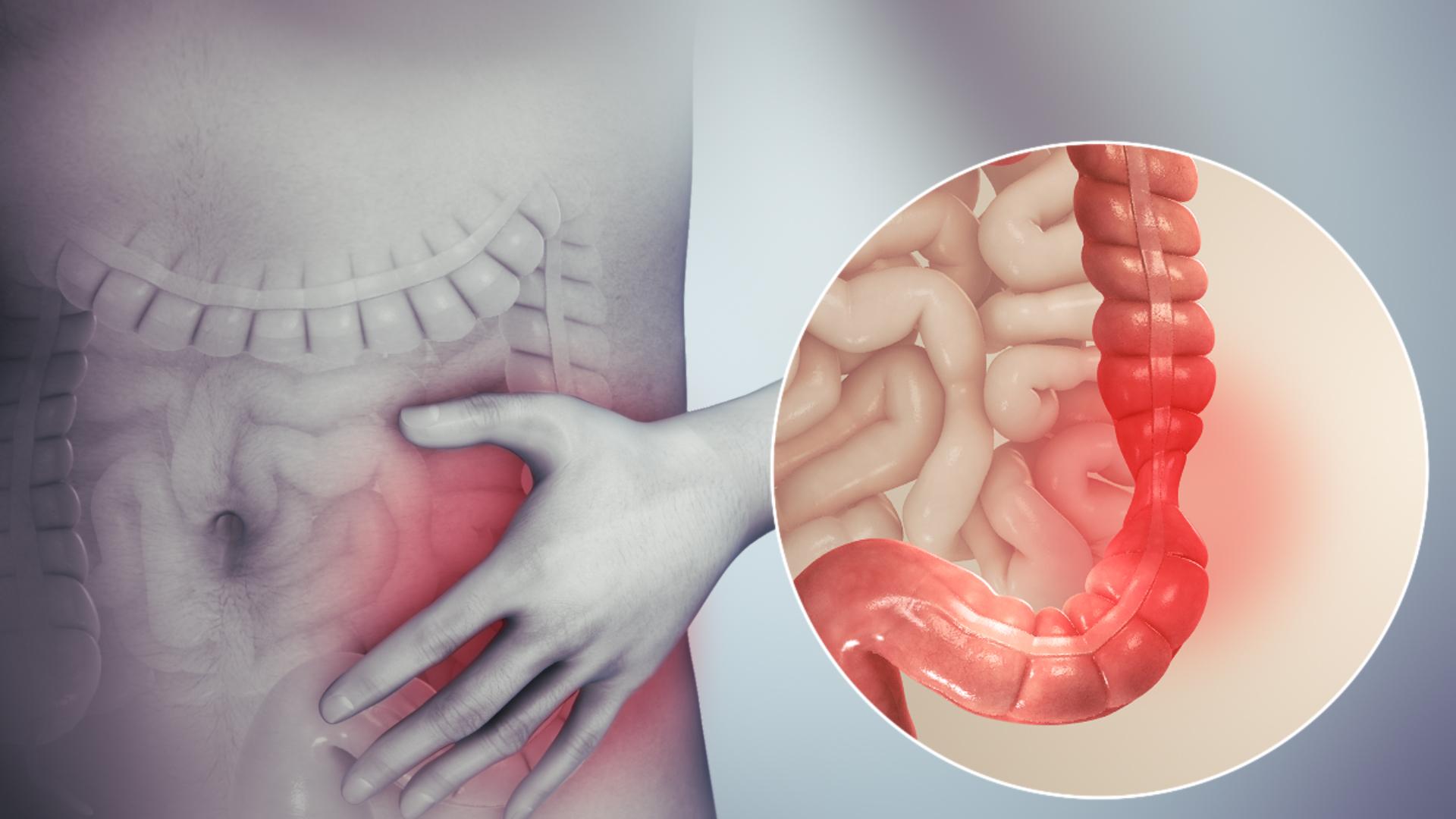 Viermii intestinali sunt o pacoste! Unii se transmit si la om, afla ce si cum!