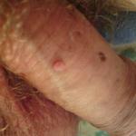 hpv virus genital warts în uretra condilomului