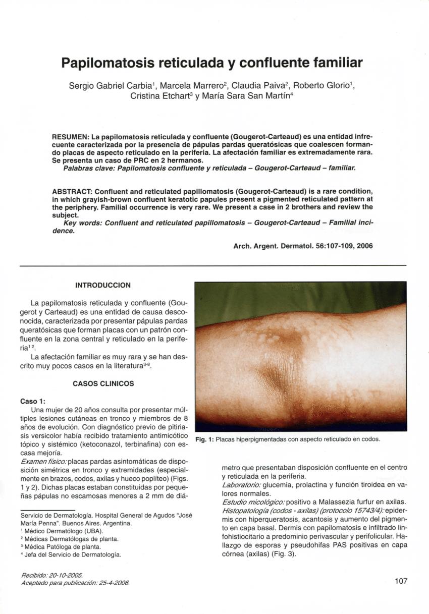 Que es acantosis y papilomatosis