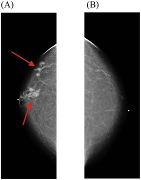 Intraductal papilloma mammogram - Intraductal papilloma size