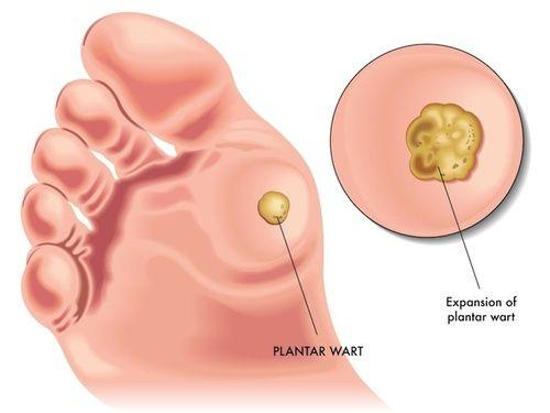 Ductal papilloma risk, Tratamentul ligamentului papilloma