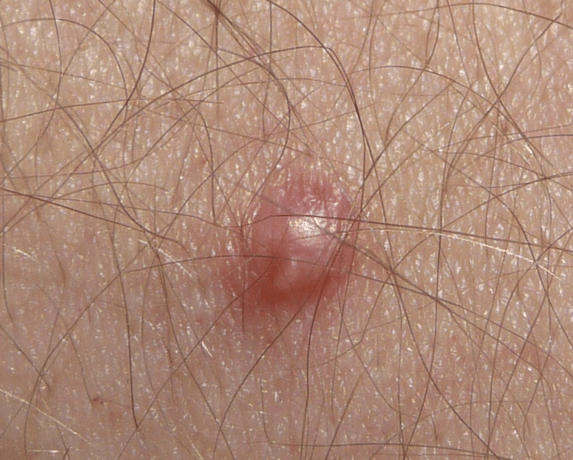 viermii sunt reduse la un an vaccin papillomavirus garcon belgique