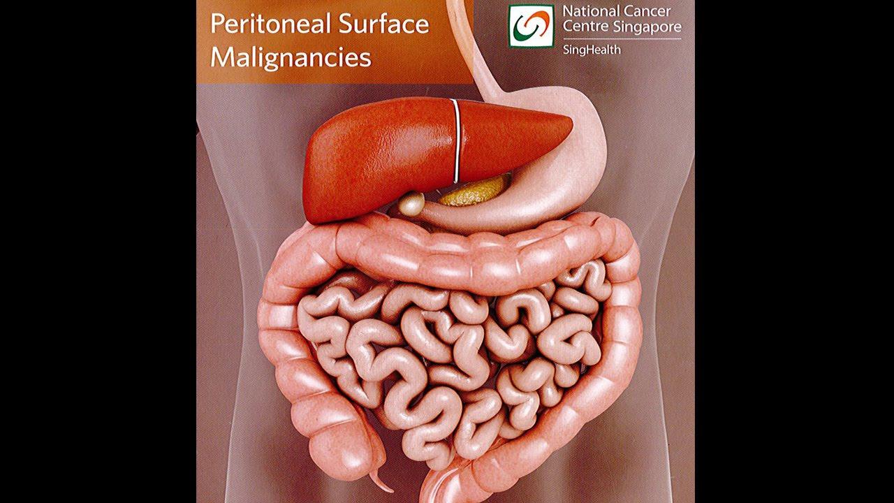 peritoneal cancer bloating hpv virus rna
