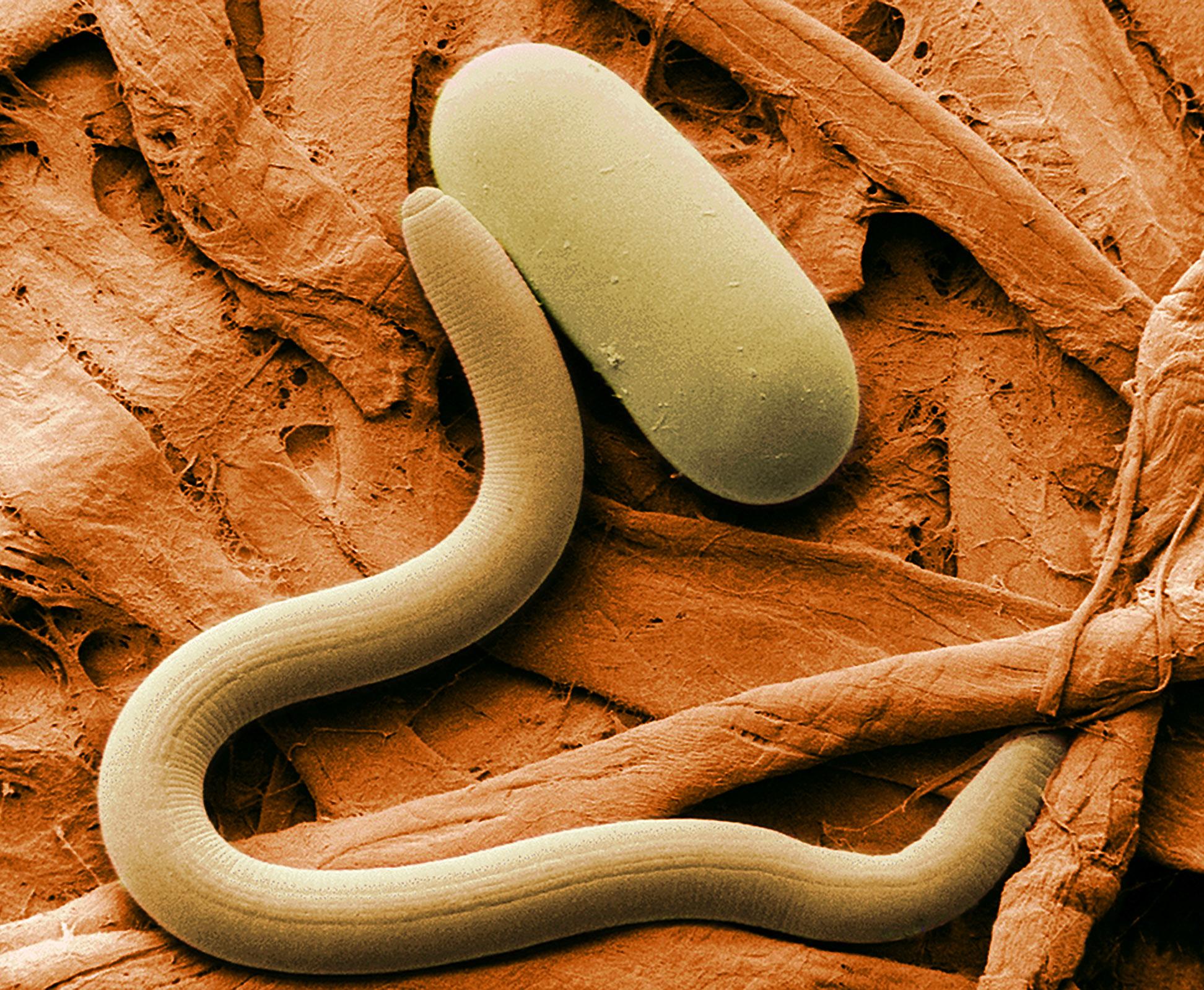 Nemathelminthes phylum. Enterobius vermicularis reino filo classe