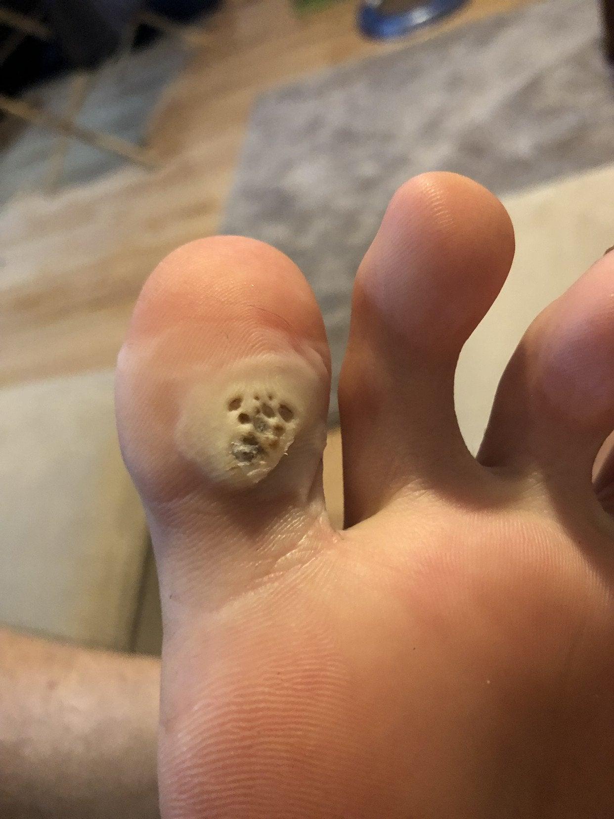 Foot verruca duct tape. Wart in foot sole