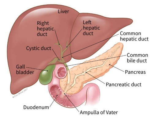 aggressive cancer of the bile duct