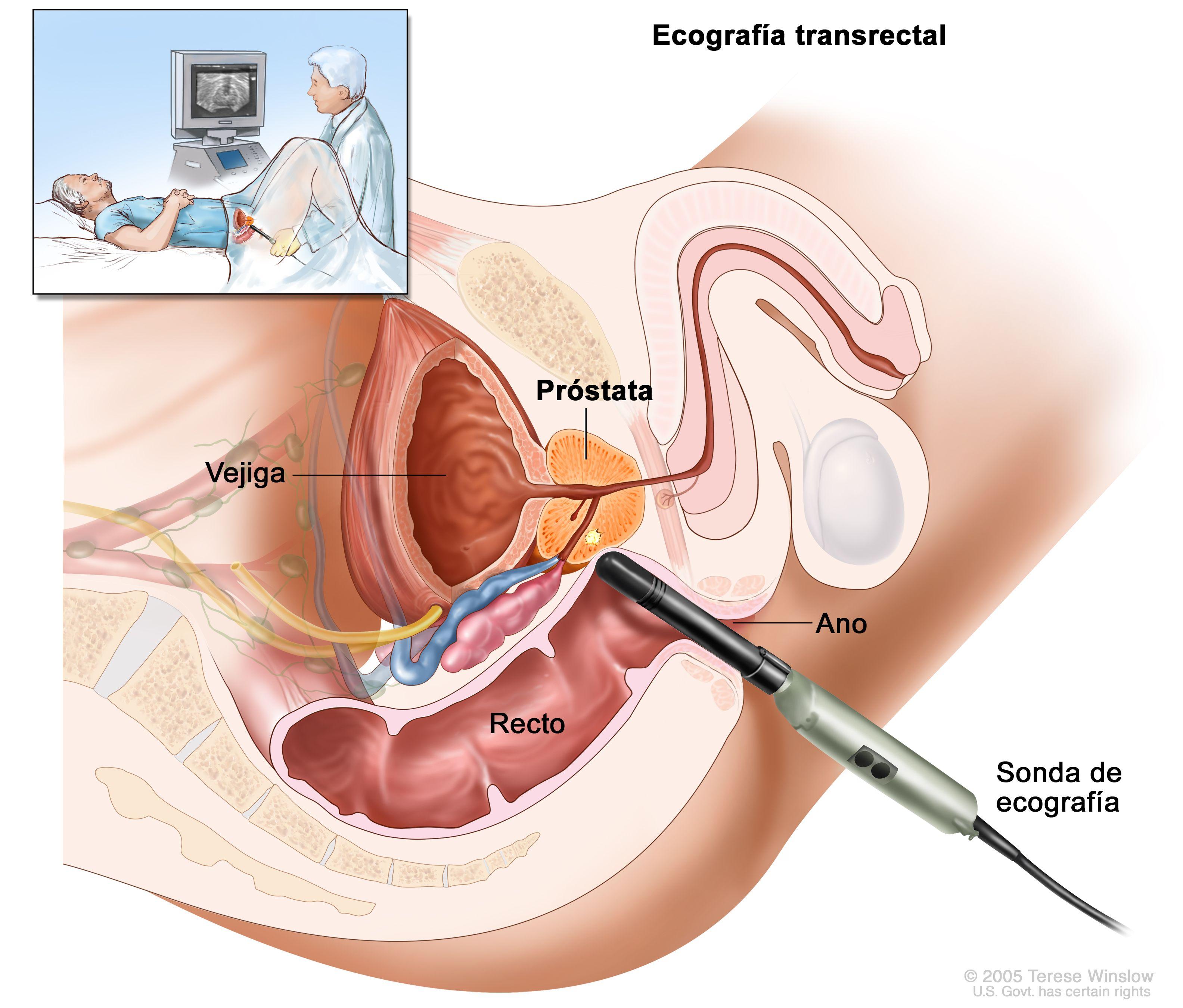 cancer de la prostata tratamiento detox curăță intestinul