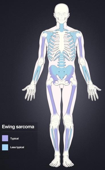 Centrul de tratare Sarcom | Anadolu Medical Center