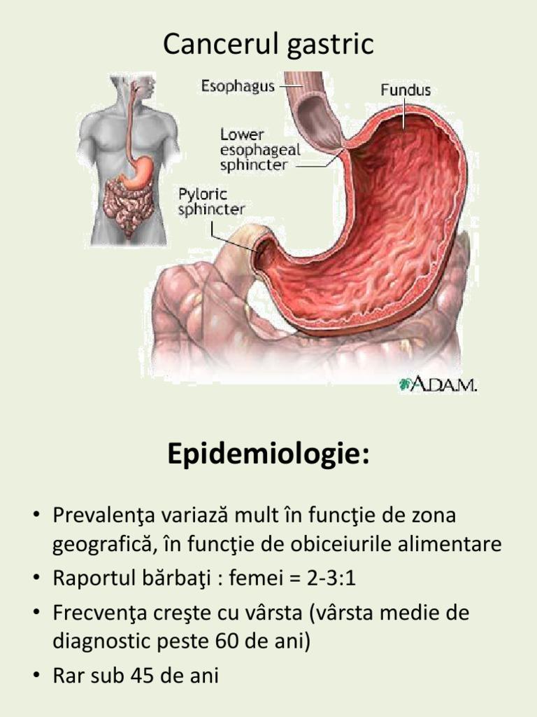 Cancerul gastric – factori de risc, diagnostic, tratament – pcmaster.ro