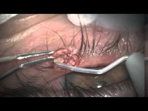 Papilloma excision eyelid cpt code, Papilloma excision cpt code