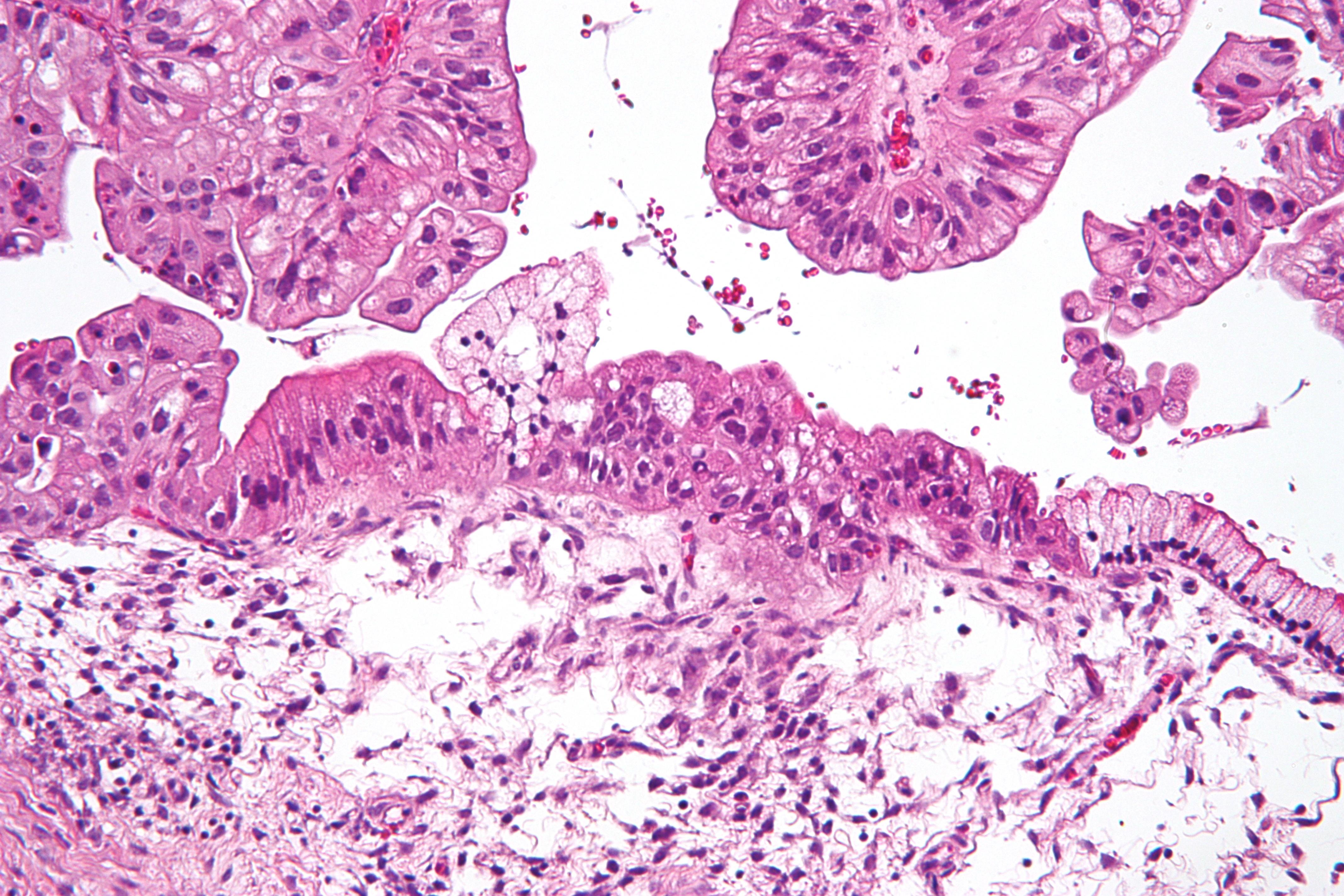îndepărtarea teniei din corpul uman paraziți microscopici ai pielii umane