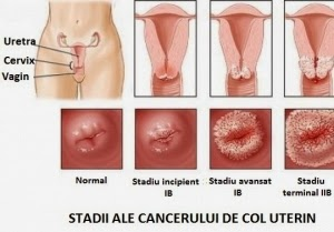 condiloame plate ale colului uterin