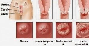 hpv genital rash