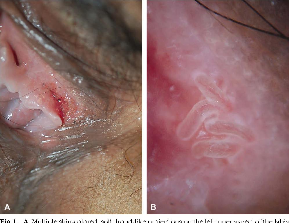 Condiloame pe colul uterin la femei - HPV - cauze, simptome tratament