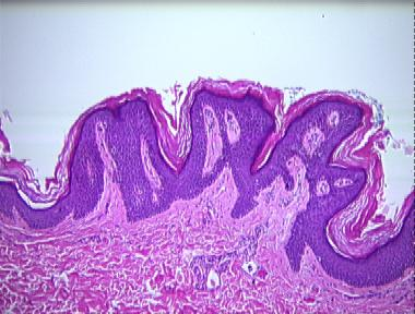 confluent and reticulated papillomatosis pathology outlines papilloma oral in dogs